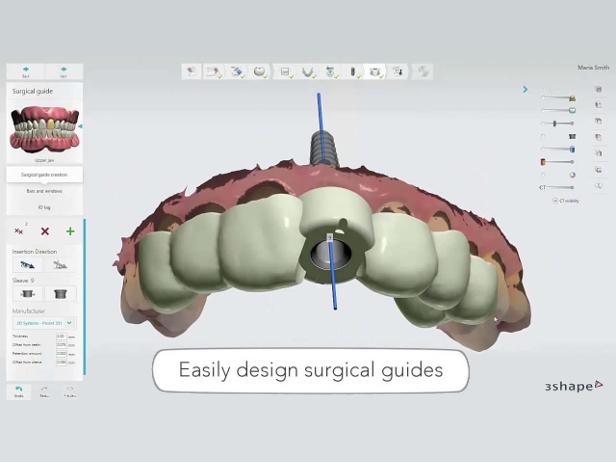 Implantology the digital way by 3Shape :Dental Tribune Europe