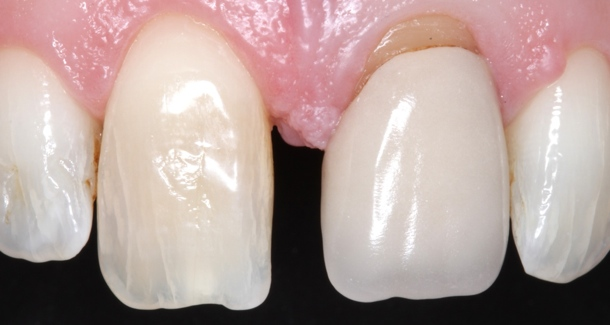 Indirect adhesive cementation with Maxcem Elite Chroma