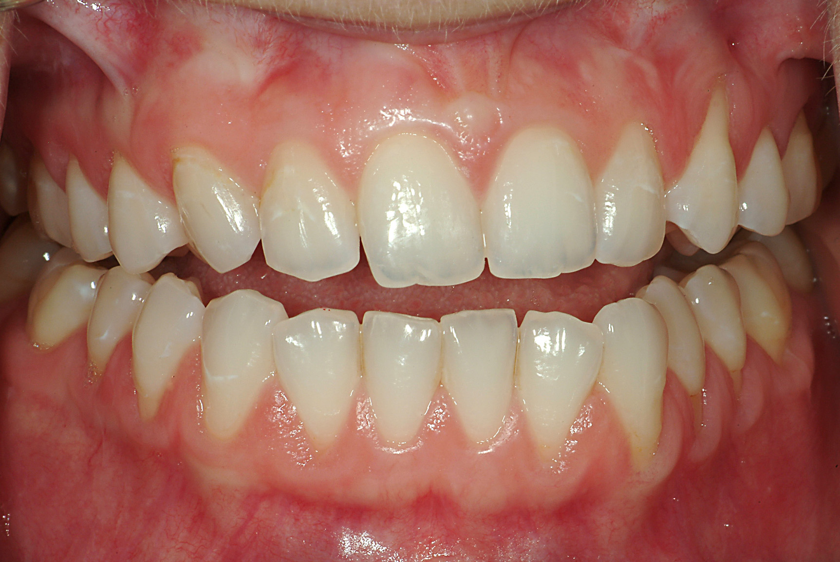 Occlusion principles for the practising dentist in the digital age