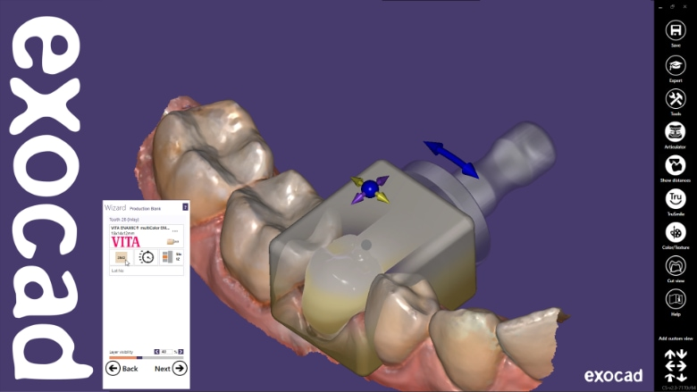 Exocad supports joint UK digital dentistry event to showcase full ChairsideCAD workflow