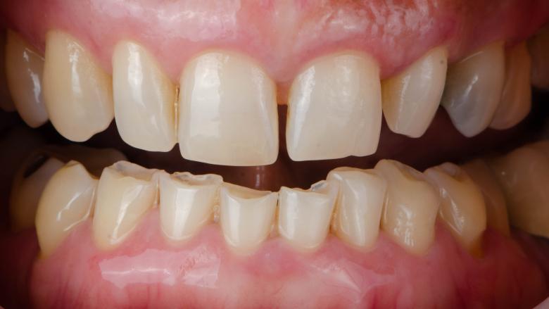 Understanding how bruxism affects dental restorations