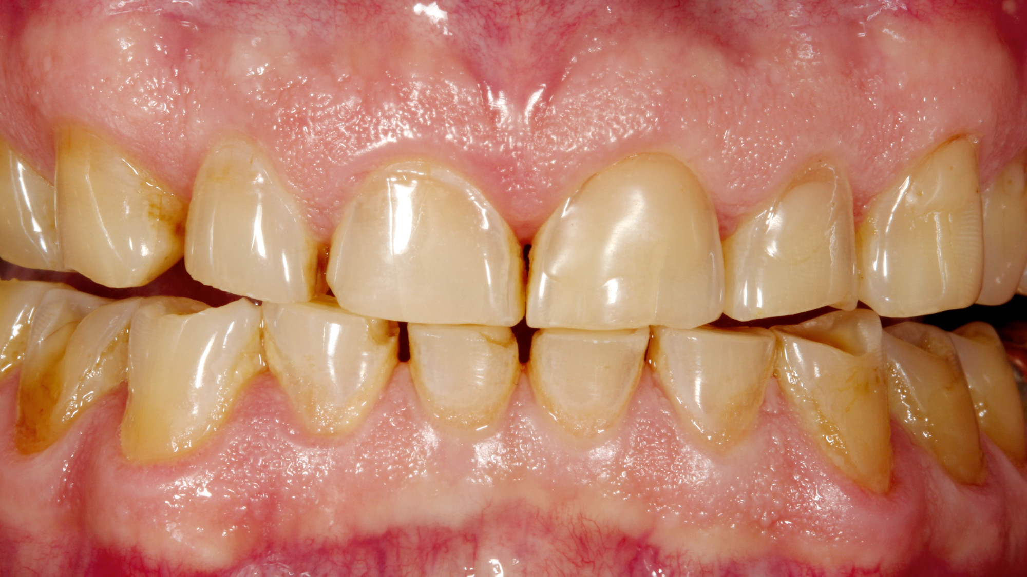 Full-mouth restoration with ZolidFX— a successful concept for sophisticated prostheses